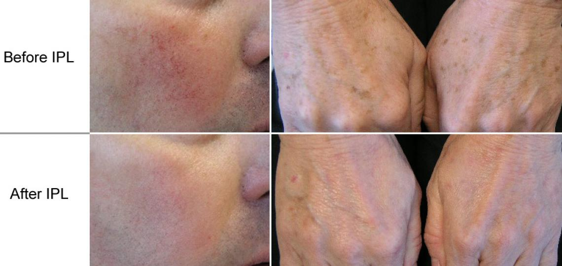 Left: A Baylor Dermatology patient shown below had 2 IPL treatments for facial blood vessels. Right: This patient had one treatment for brown spots on her hands.